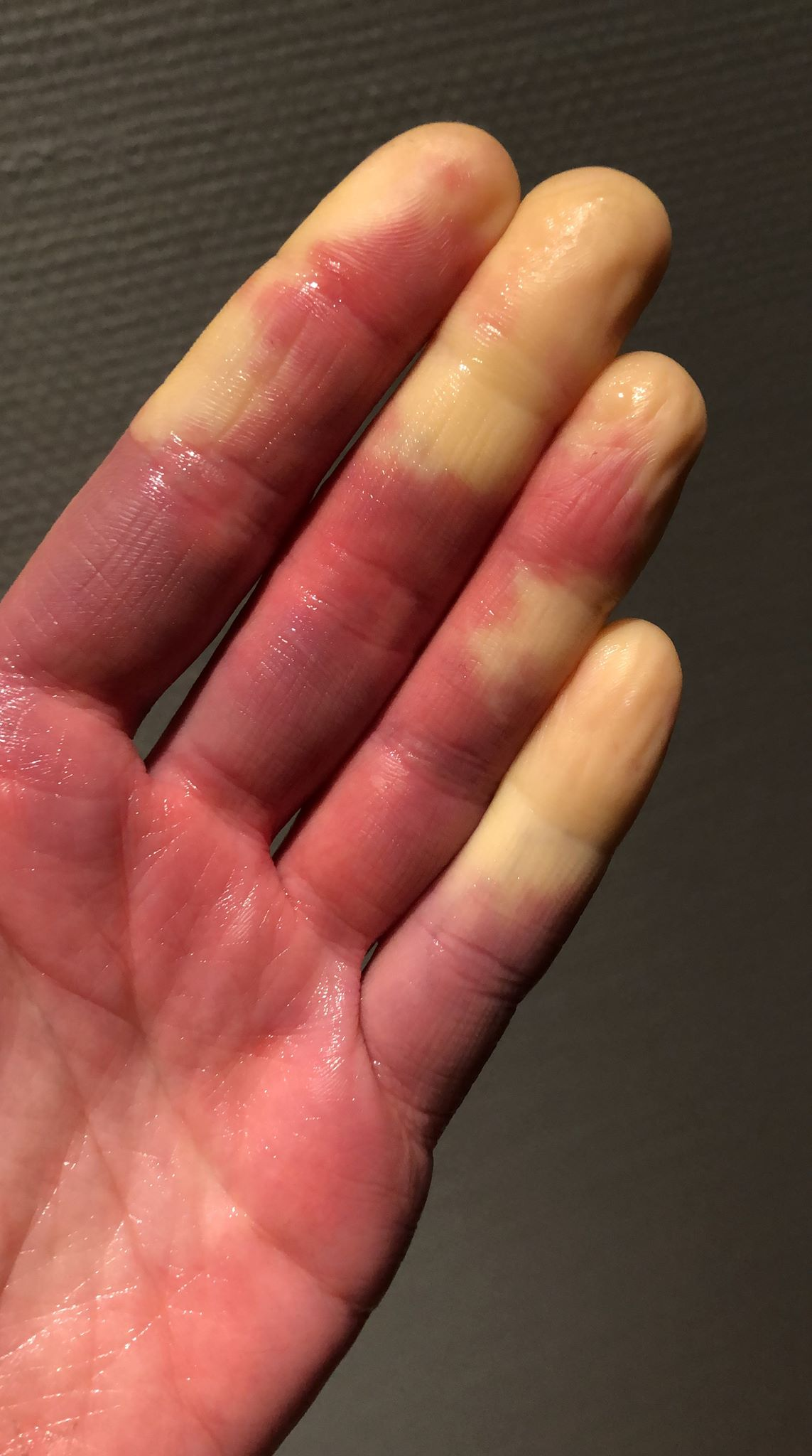 kolde fingre