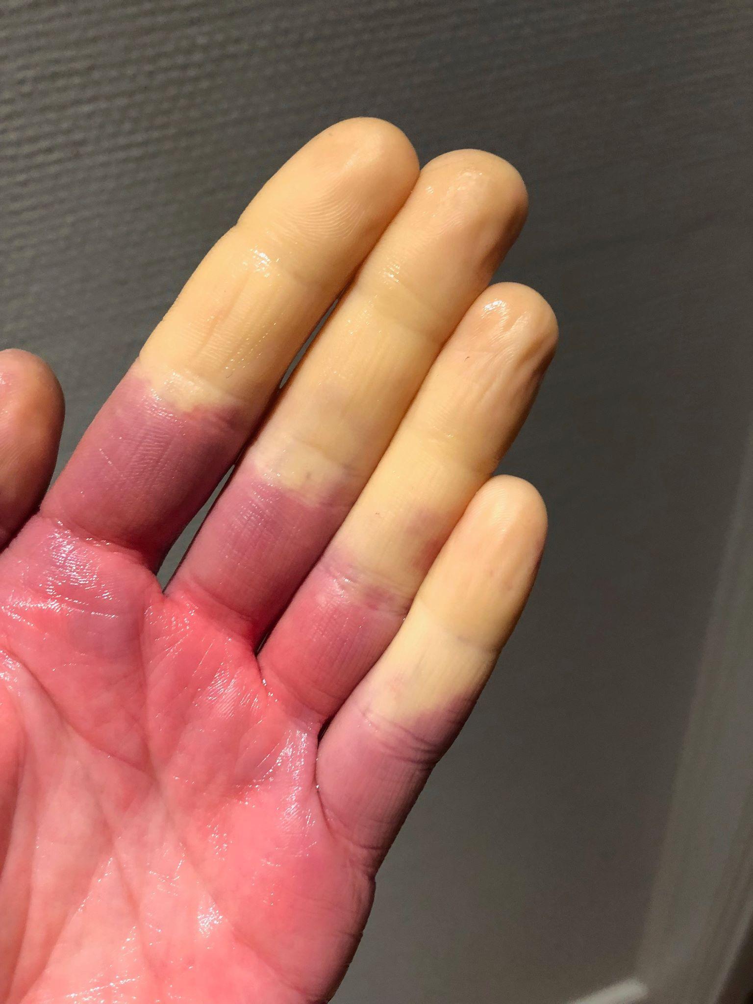 dårligt blodomløb i hænderne